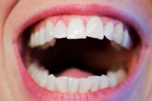 牙斑净腐蚀牙齿么牙齿健康的重要性有哪些