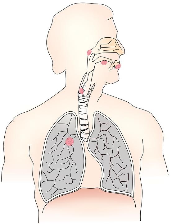 咽喉炎的得病原因怎样缓解咽喉炎的症状